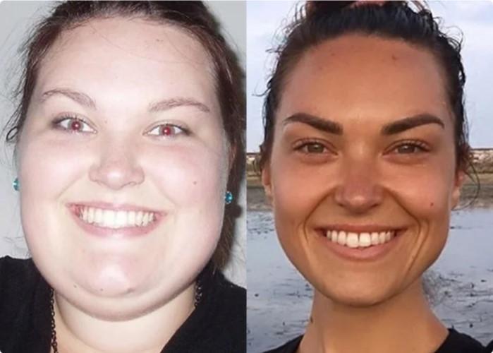 Сбросить Вес На Лице. Как избавиться от жира на лице? 3 лучших способа похудеть в лице